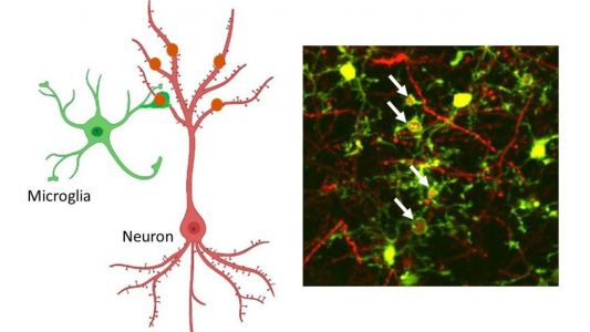 Resident Immune Cells Nurse Brain Cells after Seizure