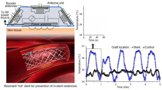 Wireless Hyperthermia Stent System for Restenosis Treatment and Testing with Swine Model