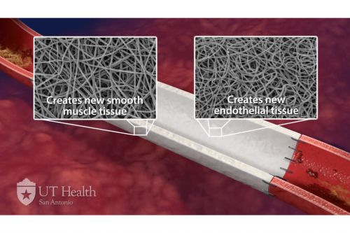 Cardiovate Adds $650K for Device Aiming to Replace Clogged Arteries
