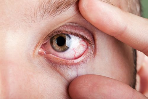 Horizon Gets Early FDA OK for First Thyroid Eye Disease Treatment
