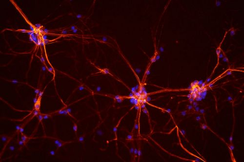 Aspen Neuro Bags $6.5M to Test Parkinson's Disease Stem Cell Therapy