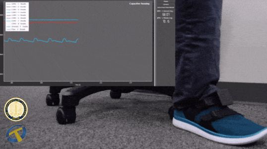 FeetBeat: A Flexible Iontronic Sensing Wearable Detects Pedal Pulses and Muscular Activities
