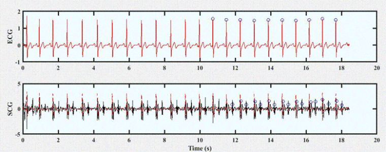 Near Real-Time Implementation of An Adaptive Seismocardiography - ECG Multimodal Framework for Cardiac Gating