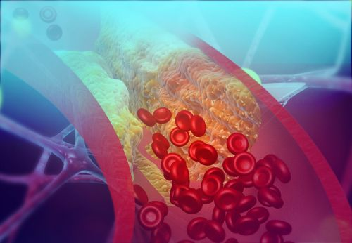 Esperion's FDA-Approved Cholesterol Drug Priced Even Lower Than Expected