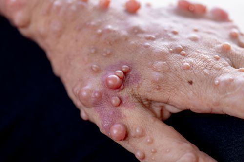 NFlection Looks to Erase NF1 Tumors With Drug That Only Goes Skin Deep