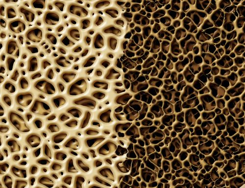 With New Data, Amgen Tries Again for FDA OK of Osteoporosis Drug
