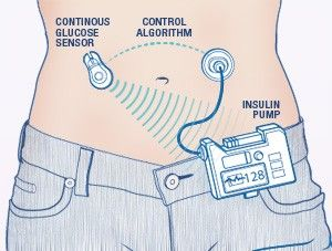 Artificial Pancreas Keeps Patients Healthier: A Perspective